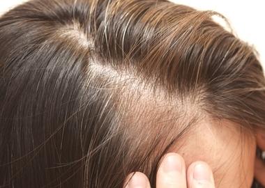 薄毛になる原因は? 今すぐ始められる効果的な対策を紹介サムネイル